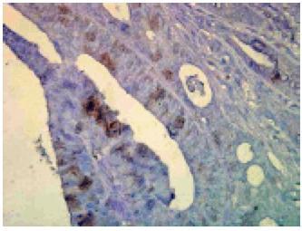 Immuno Histo Chemistry – Hsp70/Hsc70 and Hsp70   160 Slides Kit