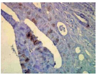 Immuno Histo Chemistry – Hsp70 and Hsc70   160 Slides Kit